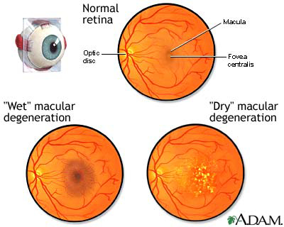 Macular Degenerative Condition
