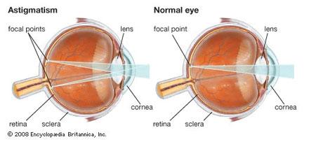 Astigmatism Ocular Conditions