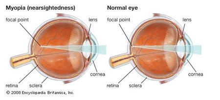 Myopia Ocular Condition